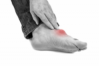 Who Is at Risk for Gout?